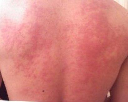 Hives on back.jpg