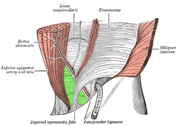 Inguinal triangle, external view.png