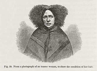 "The Expression of the Emotions in Man and Animals - Figure 19: ""From a photograph of an insane woman to show the condition of her hair""."