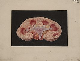 Kidney from a case of chronic parenchymatous nephritis Wellcome L0061750.jpg