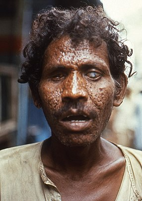 Man with facial scarring and blindness due to smallpox. Man with facial scarring and blindness due to smallpox, 1972.jpg
