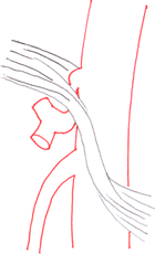 Median arcuate ligament syndrome anatomy.png