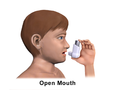 Metered-Dose Inhaler Open Mouth (Child).png