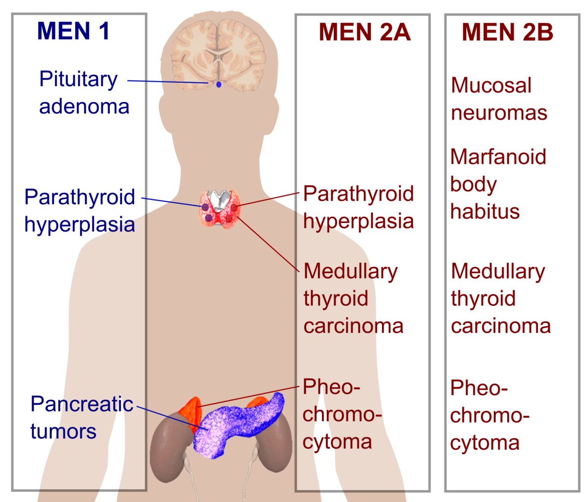 multiple endocrine neoplasia review article