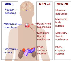 Multiple endocrine neoplasia.png