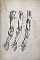 Muscles of the arm and hand; three figures of écorché arms. Wellcome V0008181EL.jpg