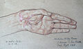 Otto Sohn-Rethel 16.03.1916 Verwundung Hand, Blatt 6.JPG