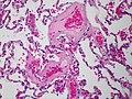 Phlebosclerosis (6984892517).jpg