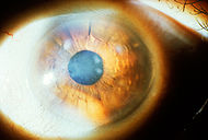 Subepithelial mucinous corneal dystrophy 1.JPEG