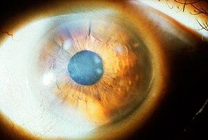 English: Subepithelial mucinous corneal dystro...
