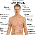 Symptoms of gold toxicity.png