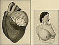 The breast- its anomalies, its diseases, and their treatment (1917) (14734013276).jpg