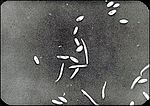 Alpha and Beta Spores of Phomopsis juniperovora.jpg