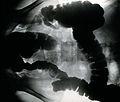 Amoebiasis; x-ray of colon. Photograph, 1930. Wellcome V0047842.jpg