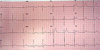 Benign early repolarization - Benign early repolarization in a 15-year-old male