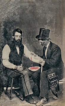 Bloodletting - Wikipedia, the free encyclopedia
