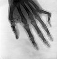 Bones of a hand. Radiograph, 1900-1904. Wellcome L0026317.jpg