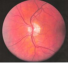 Left eye blood vessels