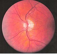 Levé cévy oko