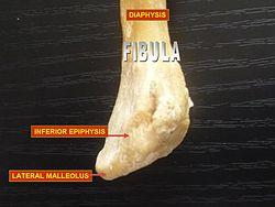 meaning of fibula