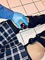 Full leg braces - adolescent female patient 2.jpg