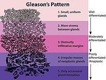 classificação de gleason prostata