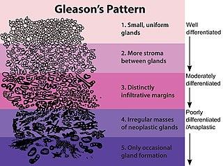 Gleason grading system