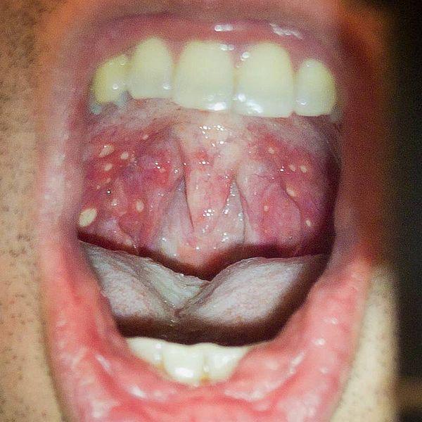 File:HFMD soft palete oropharynx.jpg
