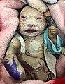 Harlequin ichtyosis.jpg