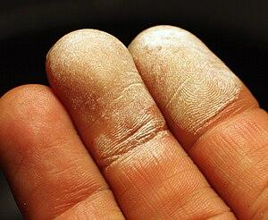 Hydrogen peroxide - Image: Hydrogen peroxide 35 percent on skin