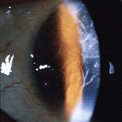 Lattice corneal dystrophy type 1.JPEG