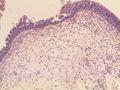 Nasal polyp 100x H+E (1).tif