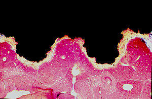 This slide shows a microscopic hisotlogical se...