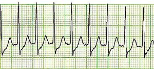 What Is Svt >> Supraventricular Tachycardia Wikipedia