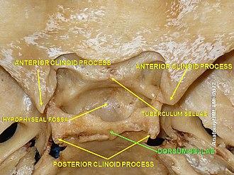 Dorsum sellae - Image: Slide 2iiii
