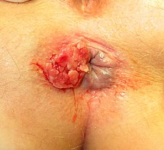 Squamous cell carcinoma of anal rim 01.jpg