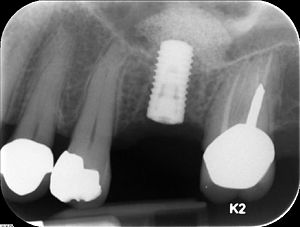 Straumann implant placed in site #14 (maxillar...