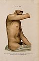 Syphilis; rash and lesions on man's torso, 1905 Wellcome V0010350EL.jpg