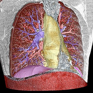 Image segmentation - Image: 3D CT of thorax