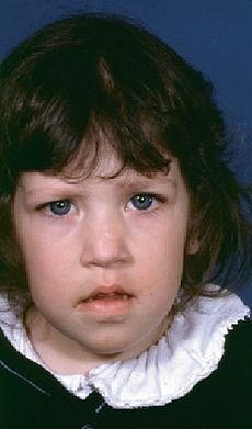 9 year old girl with phenotypic features of de Grouchy syndrome (deletion 18p).jpg