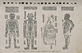 Acupuncture figures Wellcome V0018479.jpg