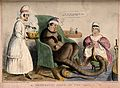 An ill creature with a human head and long tail is seated is seated in a chair being treated by two nurses Wellcome V0011361.jpg
