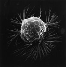 Breast cancer cell (2).jpg