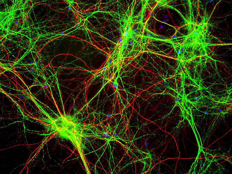 File:Culture of rat brain cells stained with antibody to MAP2 (green), Neurofilament (red) and DNA (blue).jpg