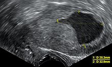 An ultrasound image showing an endometrial fluid accumulation (darker area) in a postmenopausal uterus, a finding that is highly suspicious for endometrial cancer