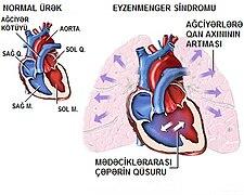 Schématický obraz popisující princip Eisenmengerova syndromu