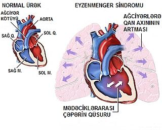 Eisenmengers syndrome fetal heart defect