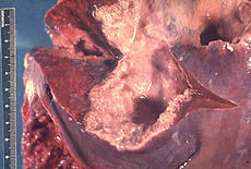 Liver containing amebic abscess, gross pathology 3MG0042 lores.jpg