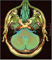 Lung ca brain mri 17.jpg