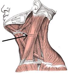 頚動脈 三角